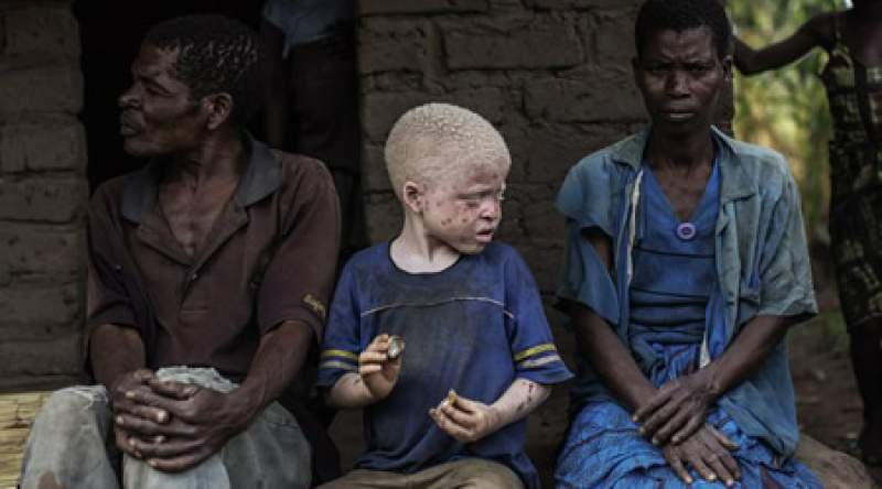 Persons with albinism need sun skin lotion to protect them from the sun