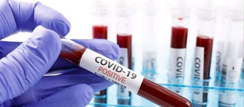 Govt Set 861 Sites to Administer Covid-19 Vaccine